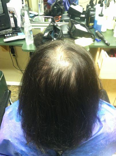 woman balding